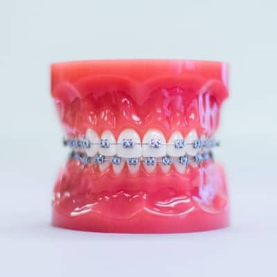 metal braces on plastic aligner